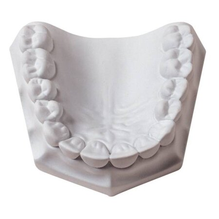 Plaster ORTHODONTIC